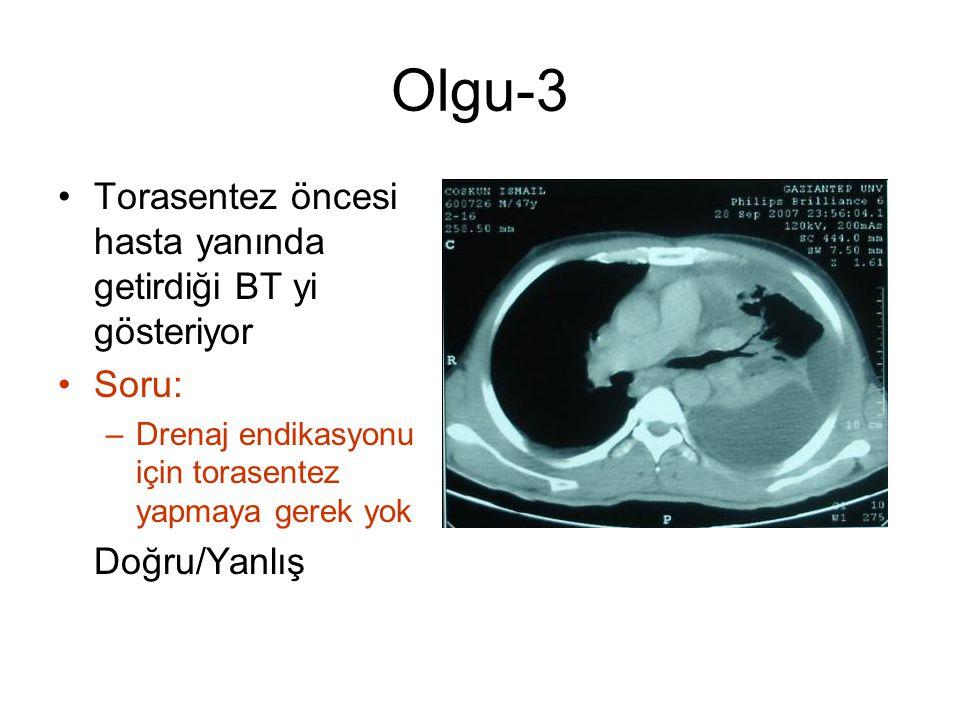 Olgu-3 Torasentez öncesi hasta yanında getirdiği BT yi gösteriyor