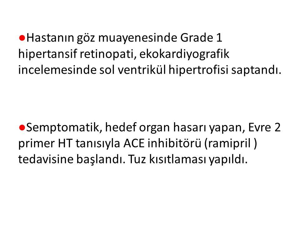 ●Hastanın göz muayenesinde Grade 1 hipertansif retinopati, ekokardiyografik incelemesinde sol ventrikül hipertrofisi saptandı.