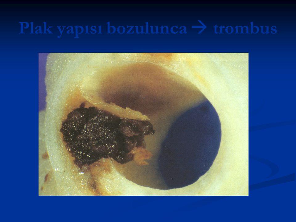 Plak yapısı bozulunca  trombus