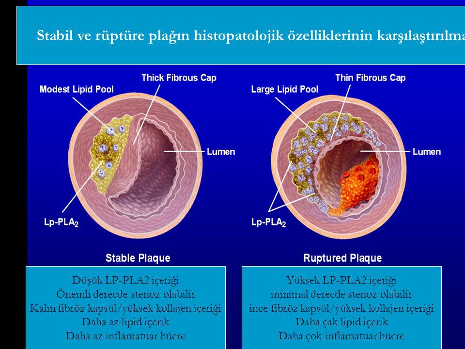 Stabil ve rüptüre plağın histopatolojik özelliklerinin karşılaştırılması