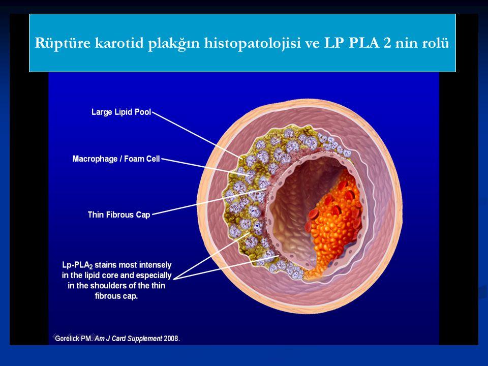 Rüptüre karotid plakğın histopatolojisi ve LP PLA 2 nin rolü