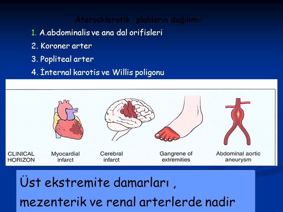 Aterosklerotik plakların dağılımı:
