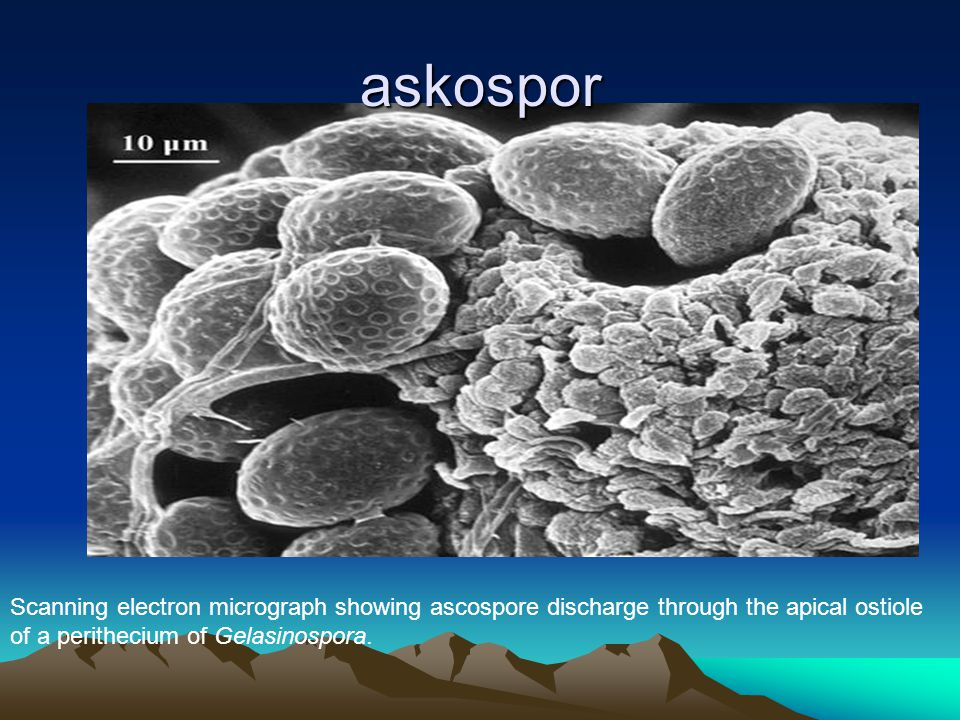 askospor Scanning electron micrograph showing ascospore discharge through the apical ostiole of a perithecium of Gelasinospora.