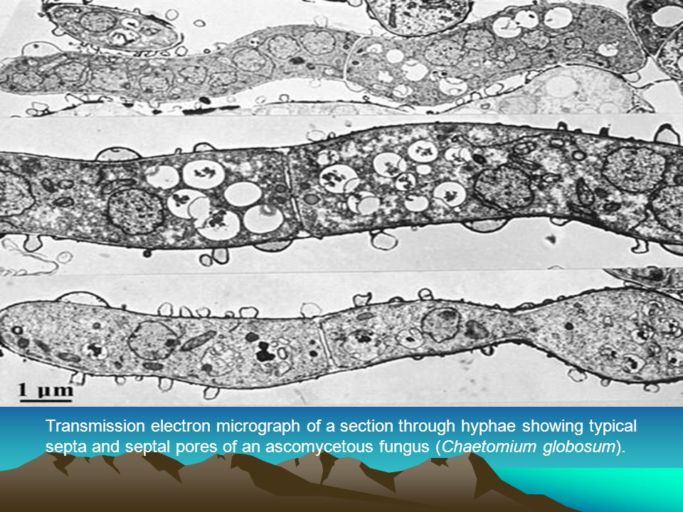 Transmission electron micrograph of a section through hyphae showing typical septa and septal pores of an ascomycetous fungus (Chaetomium globosum).