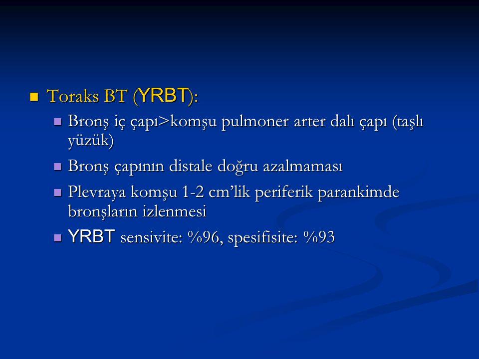 Toraks BT (YRBT): Bronş iç çapı>komşu pulmoner arter dalı çapı (taşlı yüzük) Bronş çapının distale doğru azalmaması.
