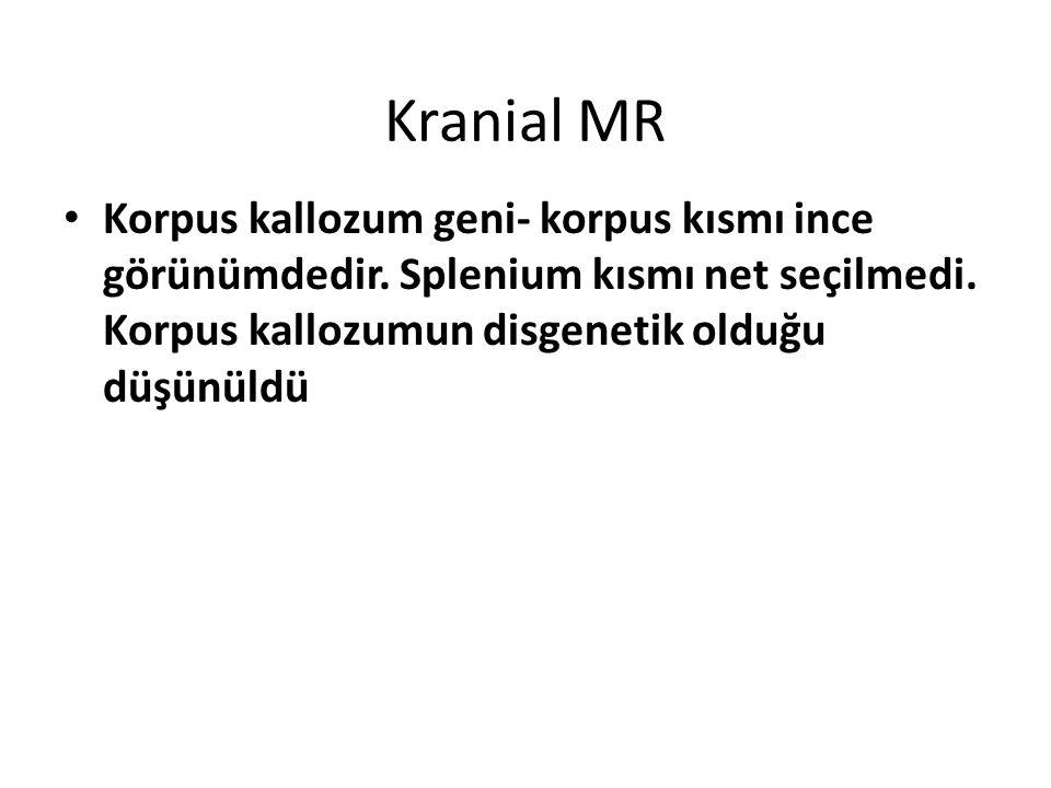 Kranial MR Korpus kallozum geni- korpus kısmı ince görünümdedir.
