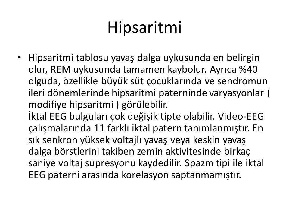 Hipsaritmi