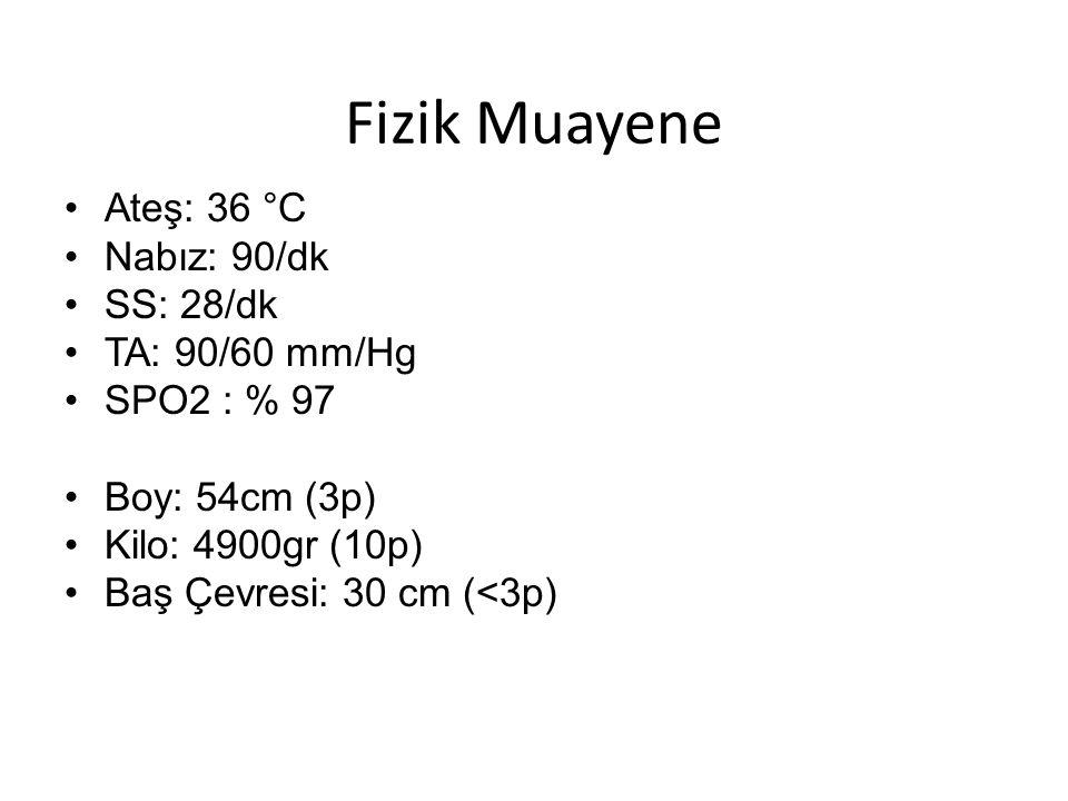 Fizik Muayene Ateş: 36 °C Nabız: 90/dk SS: 28/dk TA: 90/60 mm/Hg