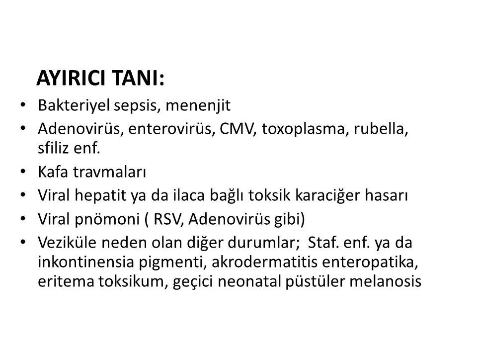 AYIRICI TANI: Bakteriyel sepsis, menenjit. Adenovirüs, enterovirüs, CMV, toxoplasma, rubella, sfiliz enf.