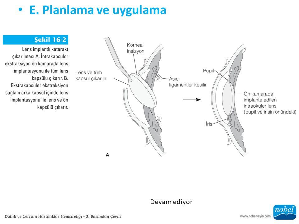 E. Planlama ve uygulama Devam ediyor