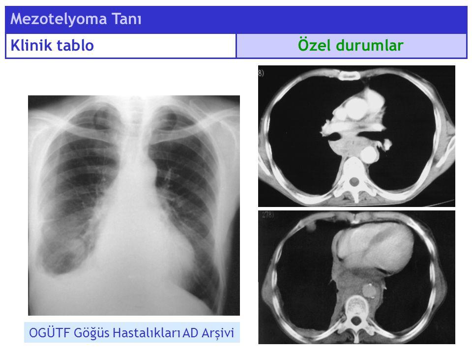 Mezotelyoma Tanı Klinik tablo Özel durumlar