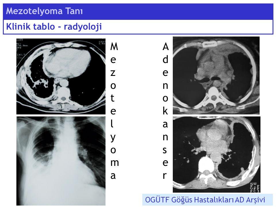 M ezote l yoma A denokanser Mezotelyoma Tanı Klinik tablo - radyoloji