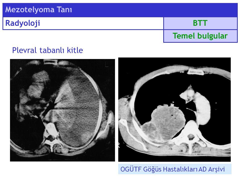 Mezotelyoma Tanı Radyoloji BTT Temel bulgular Plevral tabanlı kitle