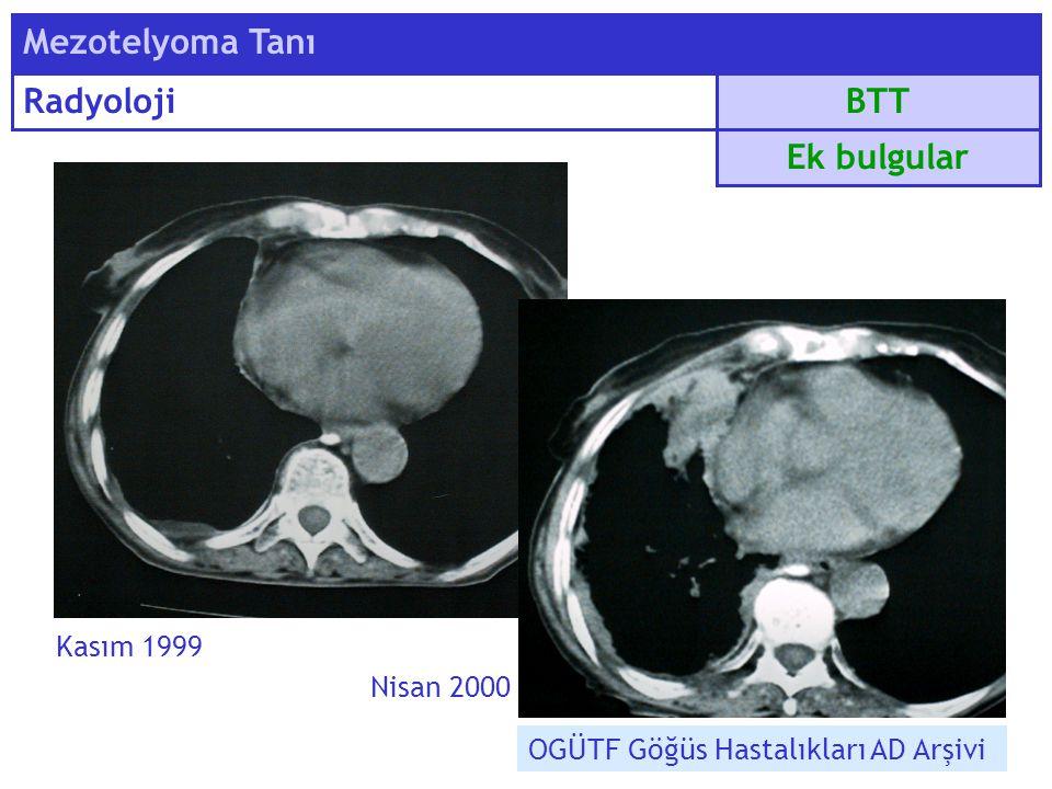 Mezotelyoma Tanı Radyoloji BTT Ek bulgular Kasım 1999 Nisan 2000