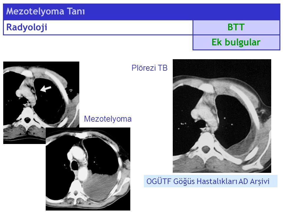 Mezotelyoma Tanı Radyoloji BTT Ek bulgular Plörezi TB Mezotelyoma