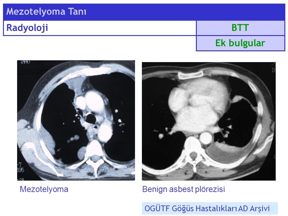 Mezotelyoma Tanı Radyoloji BTT Ek bulgular Mezotelyoma