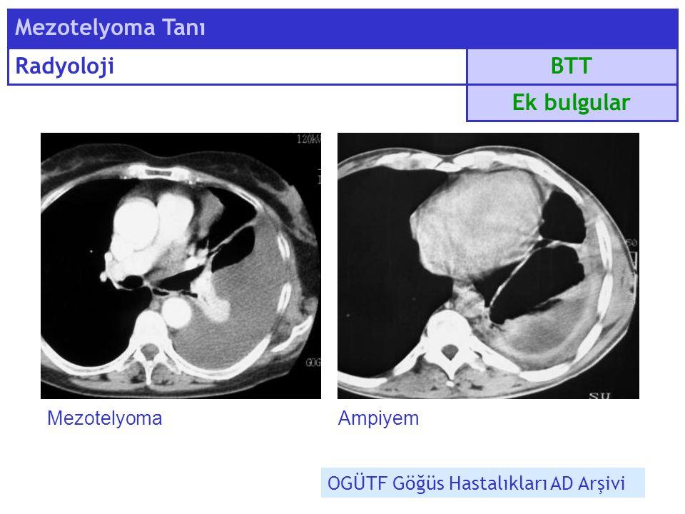 Mezotelyoma Tanı Radyoloji BTT Ek bulgular Mezotelyoma Ampiyem