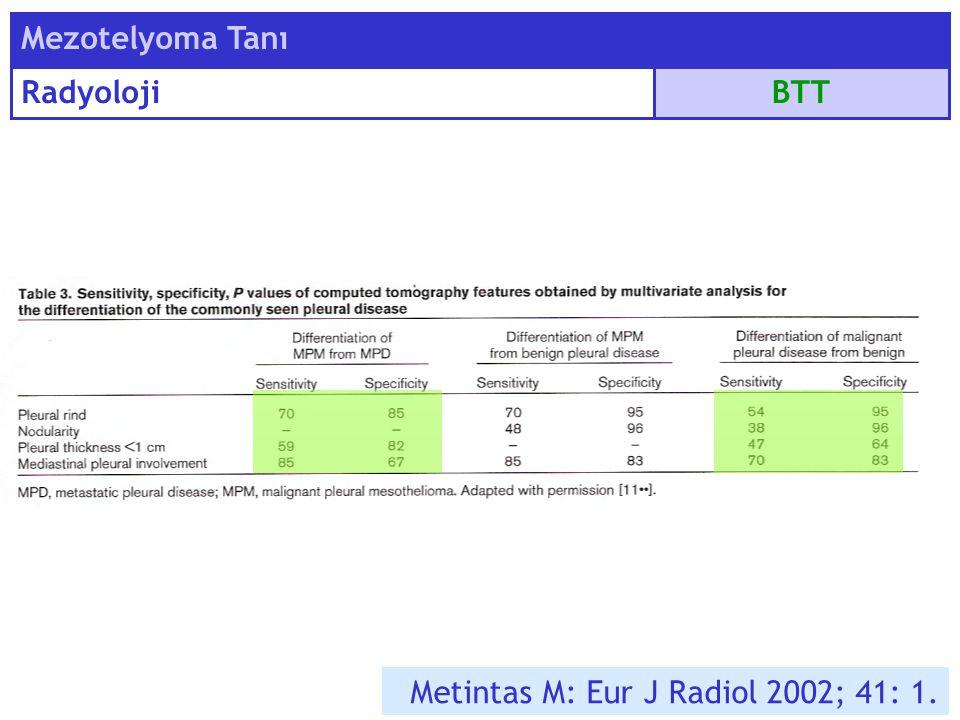 Mezotelyoma Tanı Radyoloji BTT Metintas M: Eur J Radiol 2002; 41: 1.