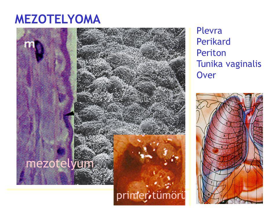 MEZOTELYOMA mezotelyum primer tümörü
