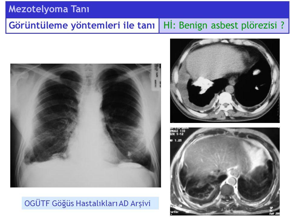 Hİ: Benign asbest plörezisi