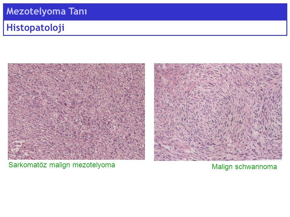 Mezotelyoma Tanı Histopatoloji Sarkomatöz malign mezotelyoma