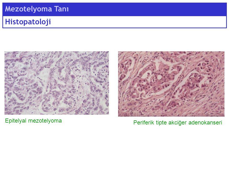 Mezotelyoma Tanı Histopatoloji Epitelyal mezotelyoma