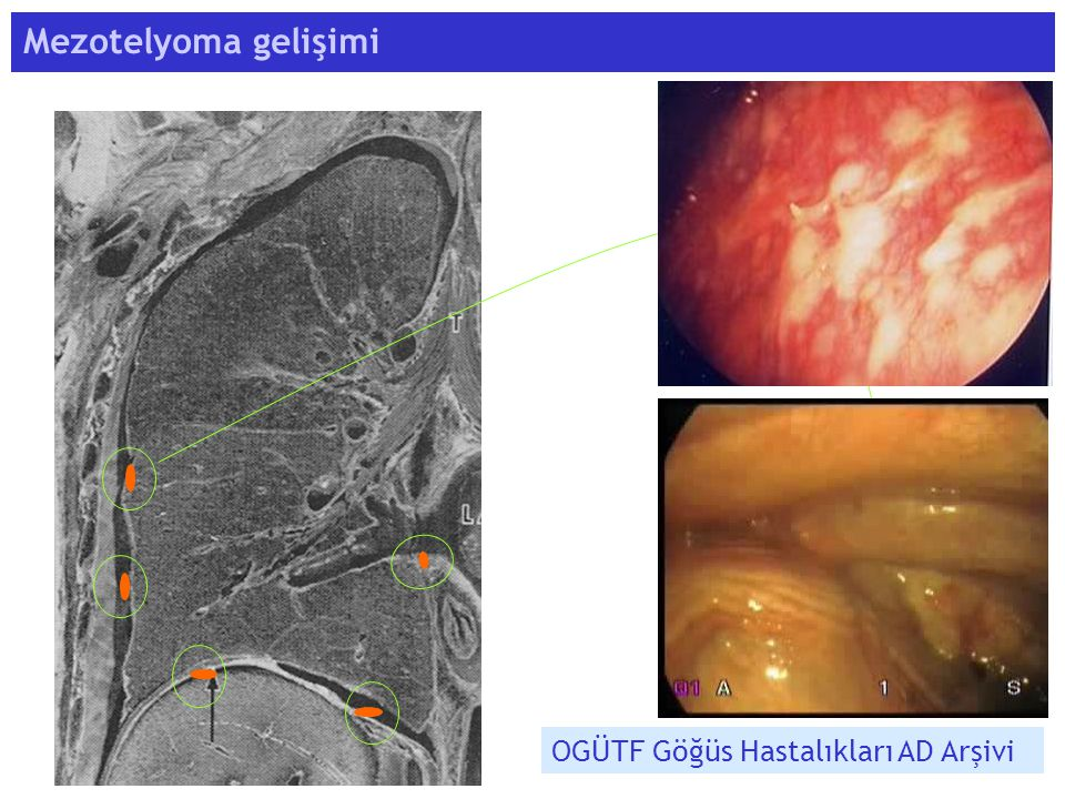 Mezotelyoma gelişimi OGÜTF Göğüs Hastalıkları AD Arşivi