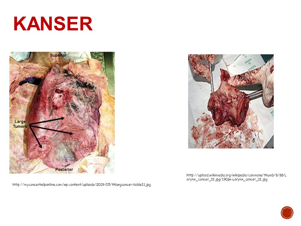 KANSER http://upload.wikimedia.org/wikipedia/commons/thumb/8/88/Larynx_cancer_01.jpg/190px-Larynx_cancer_01.jpg.