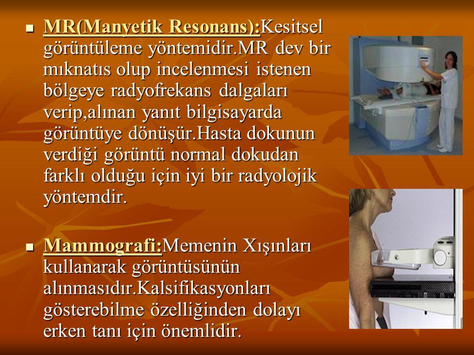 MR(Manyetik Resonans):Kesitsel görüntüleme yöntemidir