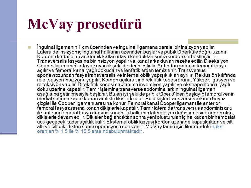 McVay prosedürü