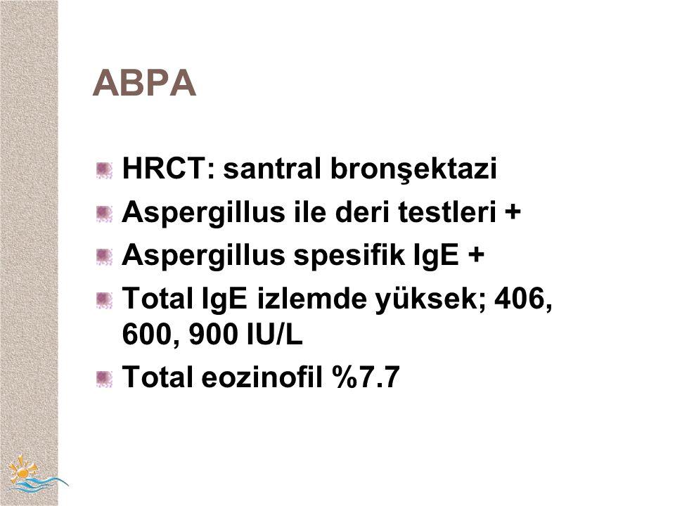 ABPA HRCT: santral bronşektazi Aspergillus ile deri testleri +