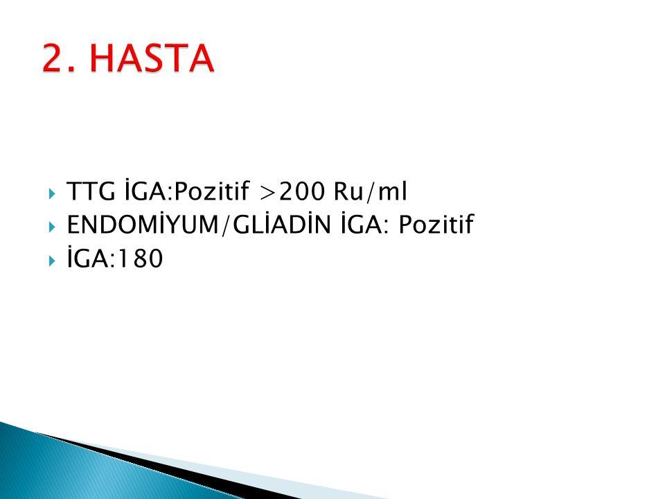 2. HASTA TTG İGA:Pozitif >200 Ru/ml ENDOMİYUM/GLİADİN İGA: Pozitif