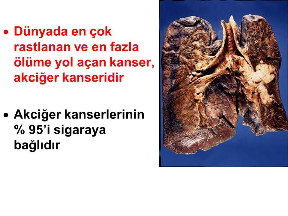 Dünyada en çok rastlanan ve en fazla ölüme yol açan kanser, akciğer kanseridir