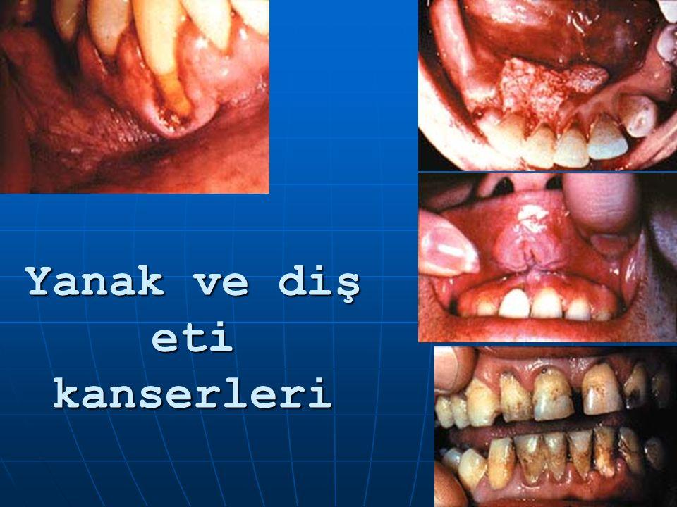 Yanak ve diş eti kanserleri