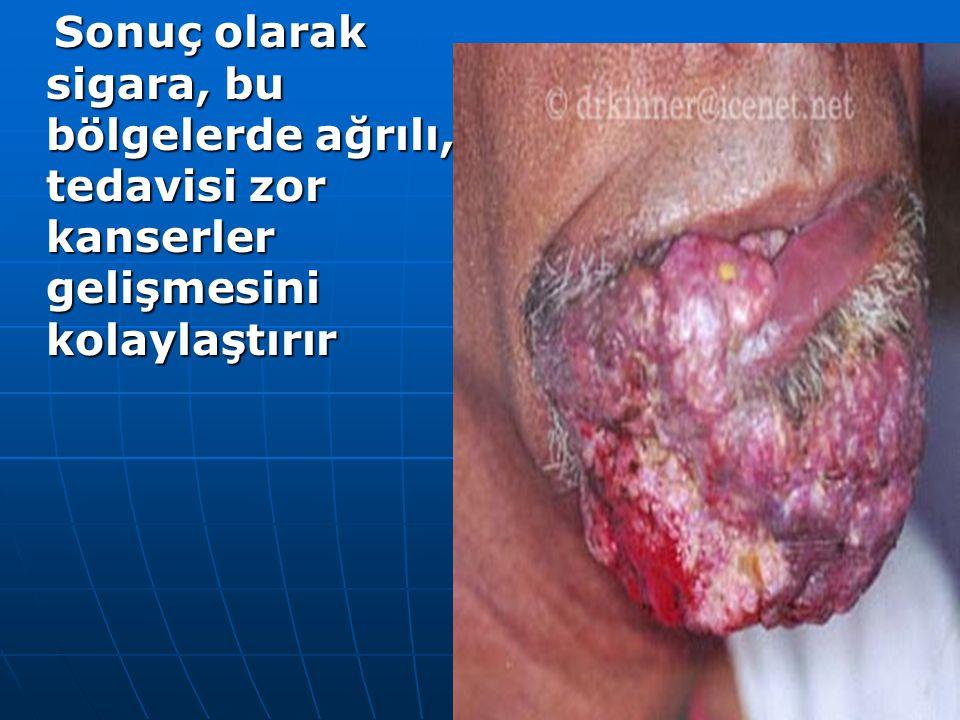 Sonuç olarak sigara, bu bölgelerde ağrılı, tedavisi zor kanserler gelişmesini kolaylaştırır