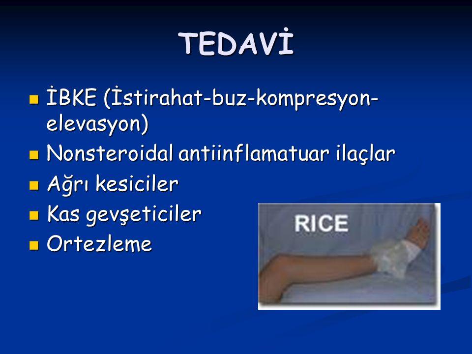 TEDAVİ İBKE (İstirahat-buz-kompresyon-elevasyon)