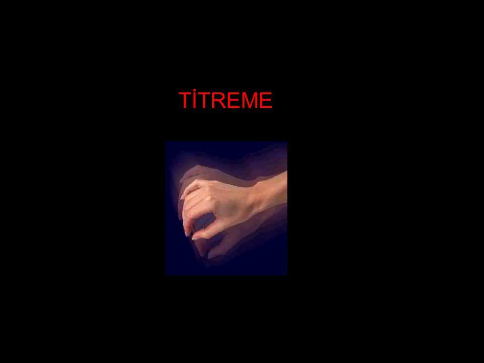 TİTREME
