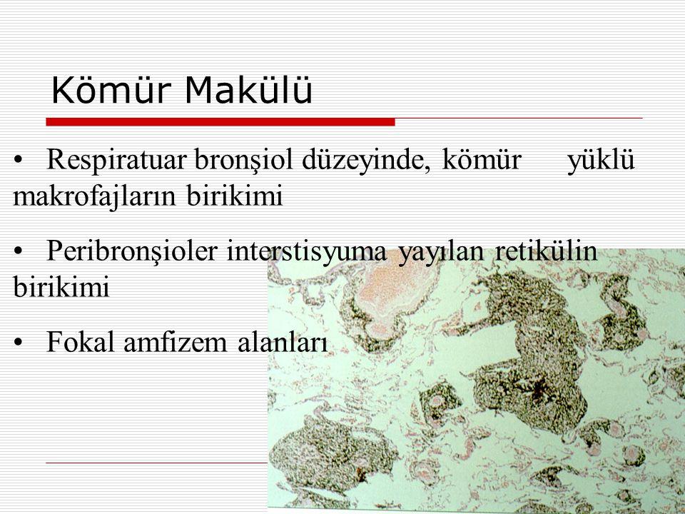 Kömür Makülü Respiratuar bronşiol düzeyinde, kömür yüklü makrofajların birikimi. Peribronşioler interstisyuma yayılan retikülin birikimi.