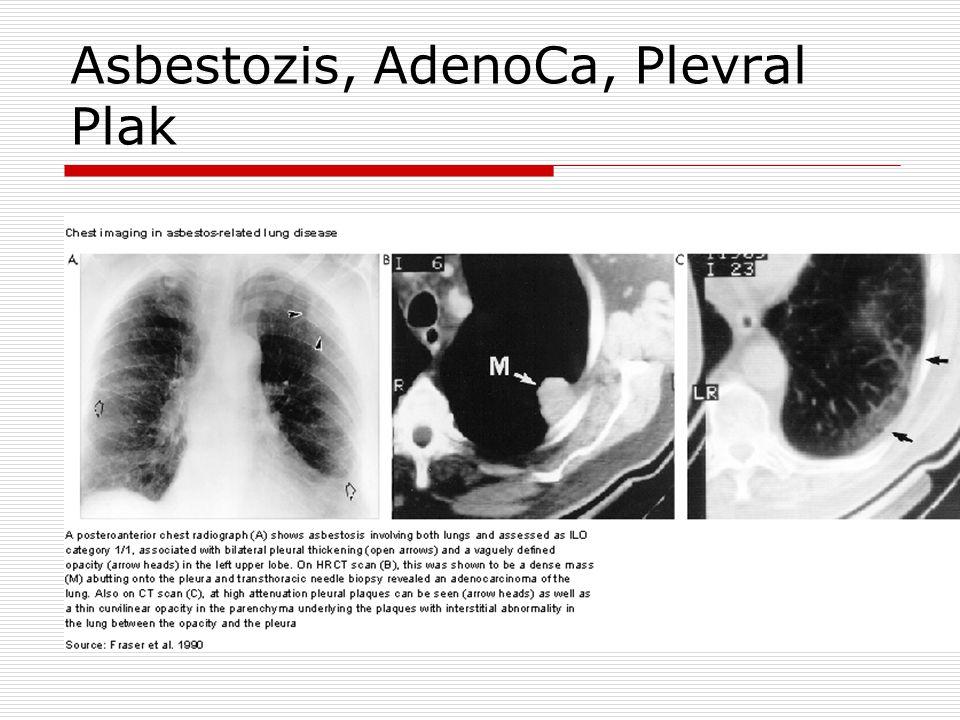 Asbestozis, AdenoCa, Plevral Plak