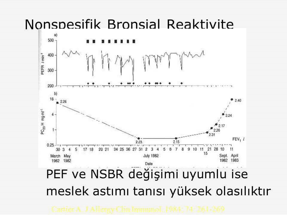 Nonspesifik Bronşial Reaktivite