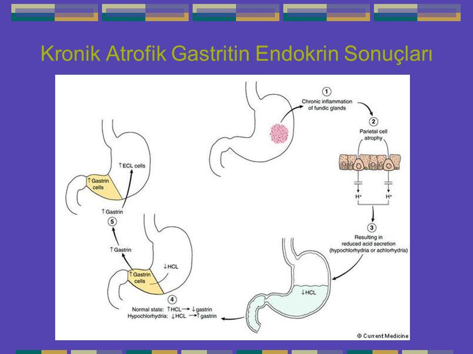Kronik Atrofik Gastritin Endokrin Sonuçları