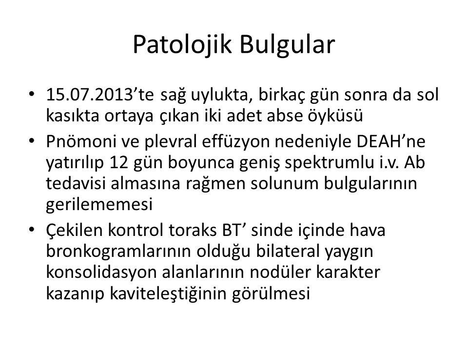 Patolojik Bulgular 15.07.2013'te sağ uylukta, birkaç gün sonra da sol kasıkta ortaya çıkan iki adet abse öyküsü.