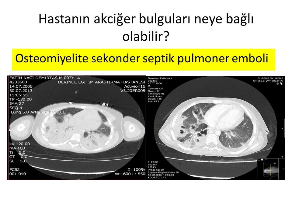 Hastanın akciğer bulguları neye bağlı olabilir