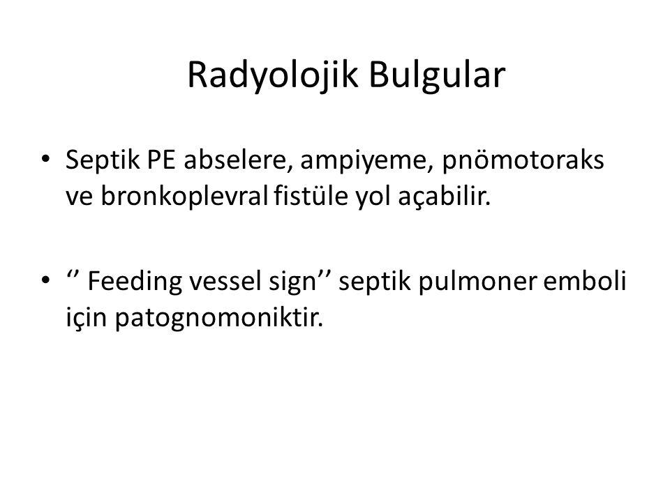 Radyolojik Bulgular Septik PE abselere, ampiyeme, pnömotoraks ve bronkoplevral fistüle yol açabilir.