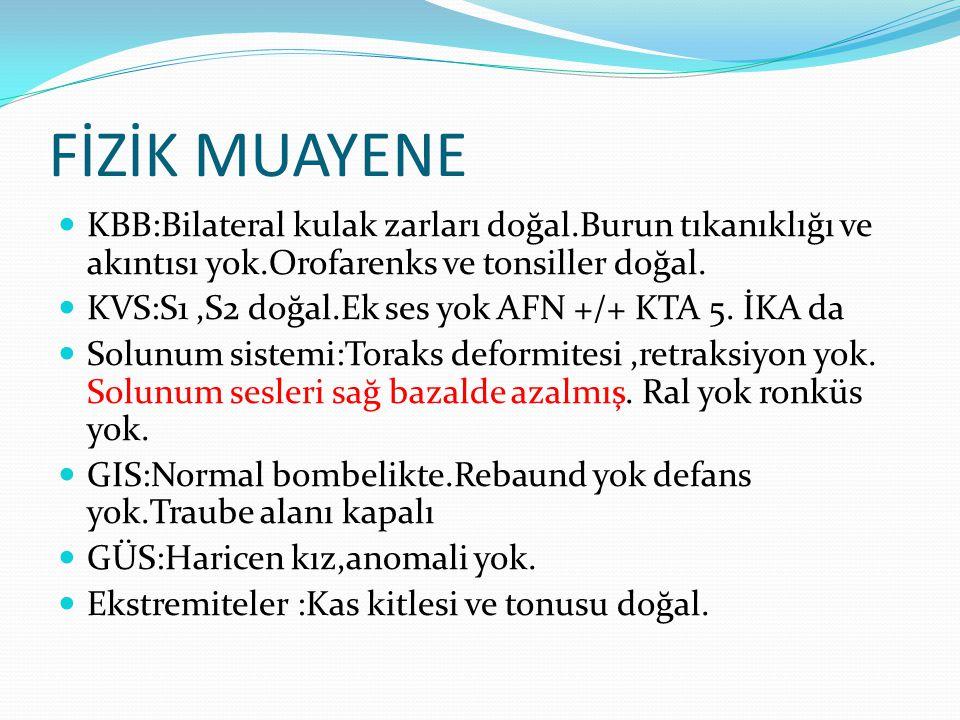FİZİK MUAYENE KBB:Bilateral kulak zarları doğal.Burun tıkanıklığı ve akıntısı yok.Orofarenks ve tonsiller doğal.