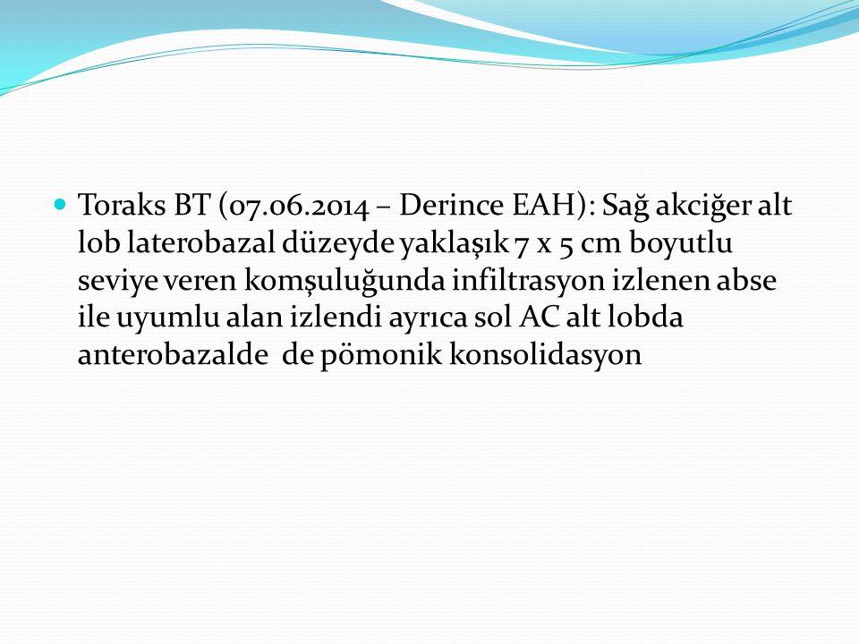 Toraks BT (07.06.2014 – Derince EAH): Sağ akciğer alt lob laterobazal düzeyde yaklaşık 7 x 5 cm boyutlu seviye veren komşuluğunda infiltrasyon izlenen abse ile uyumlu alan izlendi ayrıca sol AC alt lobda anterobazalde de pömonik konsolidasyon