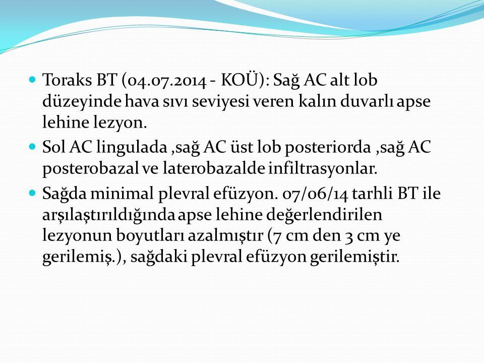 Toraks BT (04.07.2014 - KOÜ): Sağ AC alt lob düzeyinde hava sıvı seviyesi veren kalın duvarlı apse lehine lezyon.