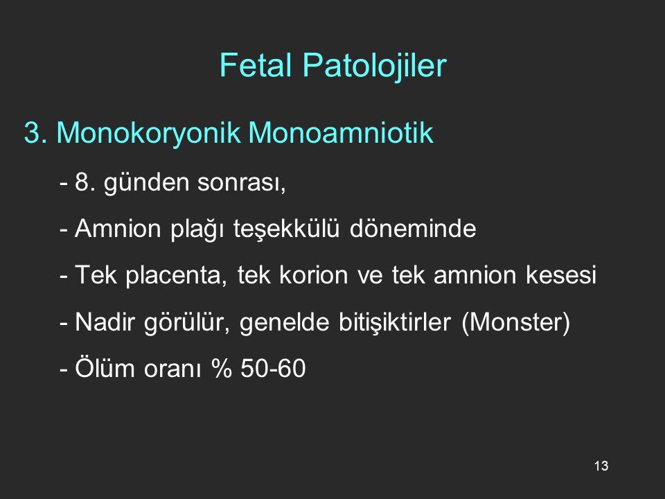 Fetal Patolojiler 3. Monokoryonik Monoamniotik - 8. günden sonrası,