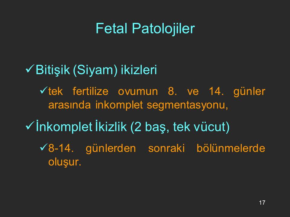 Fetal Patolojiler Bitişik (Siyam) ikizleri