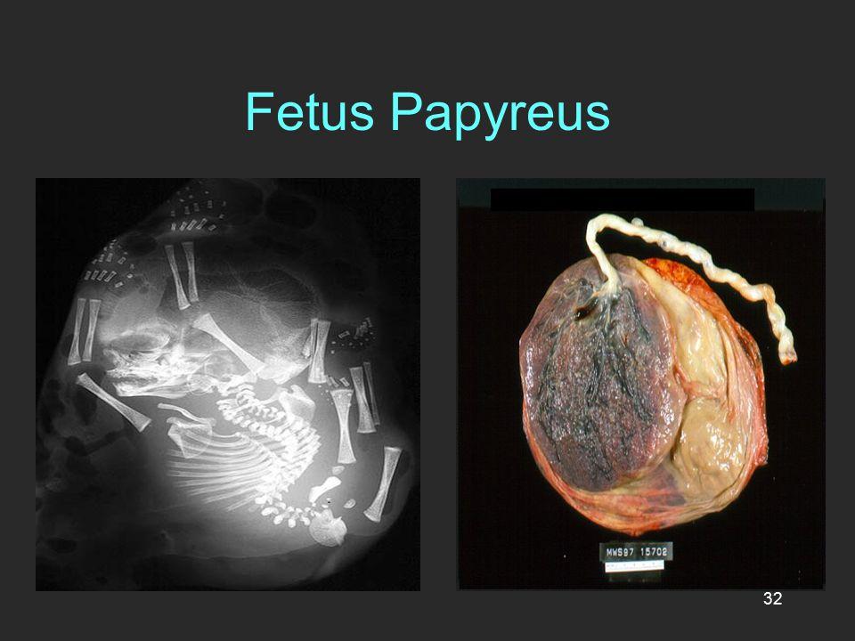 Fetus Papyreus